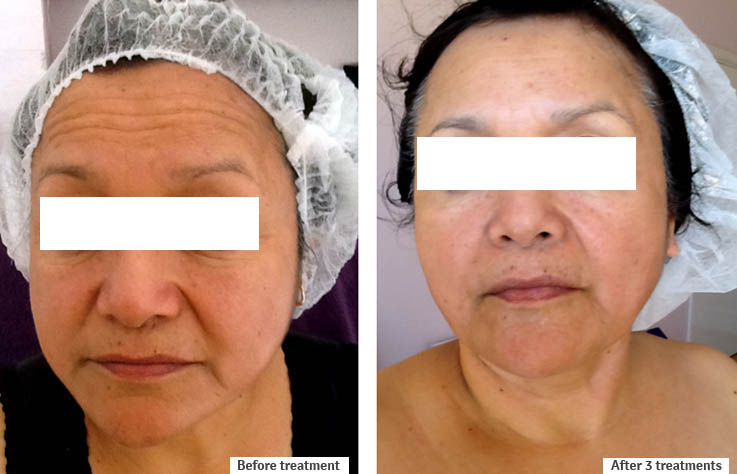 Skin Tightening before and after images