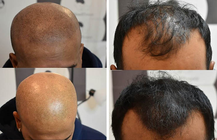 Scalp Micro Pigmentation